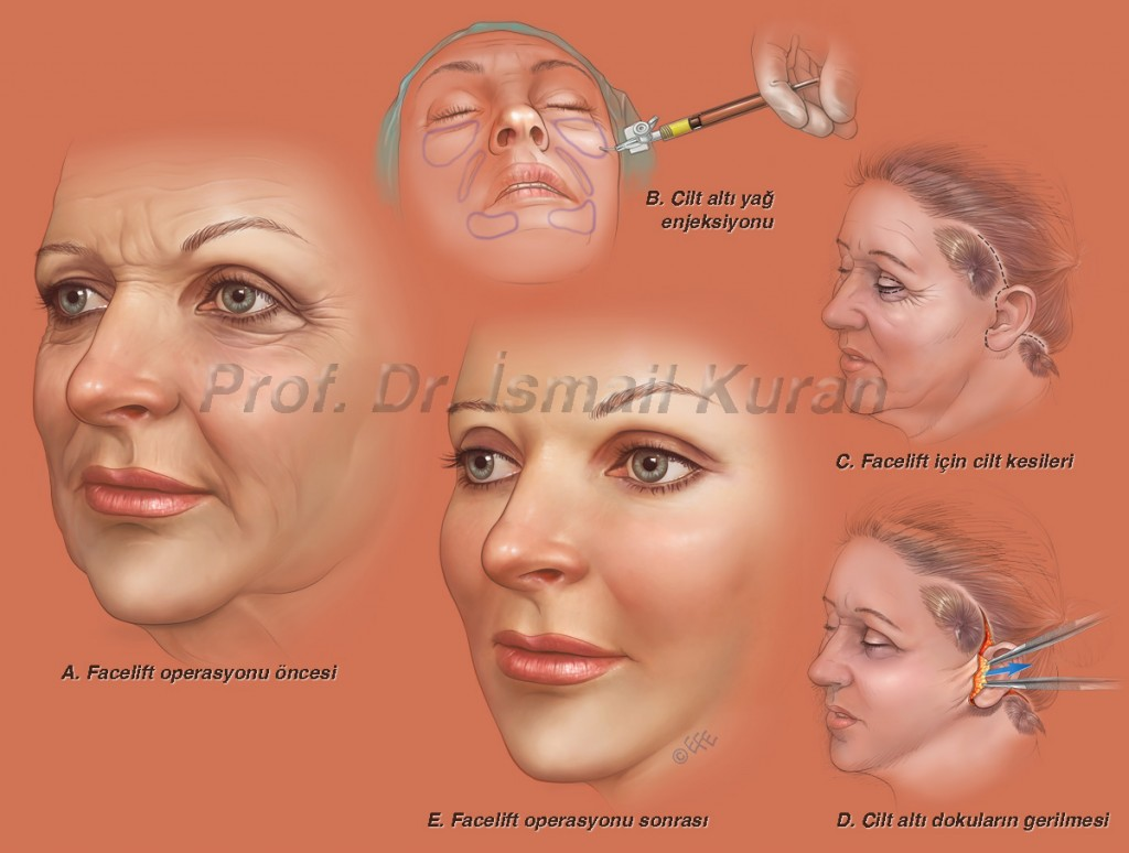 Facelift technique