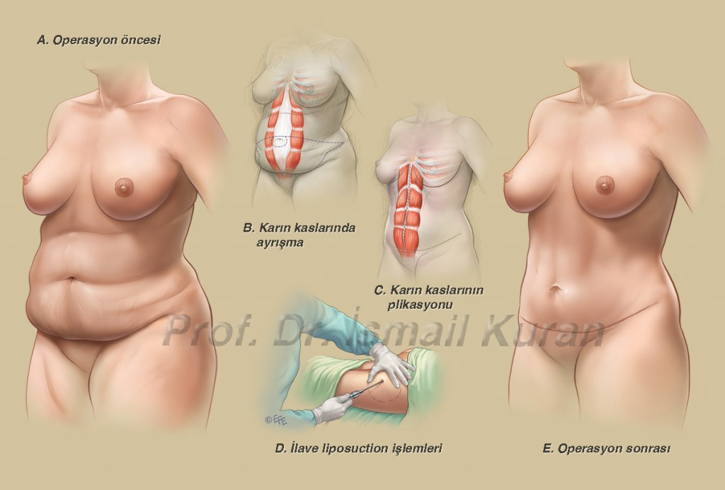 Abdominoplasty & Liposuction