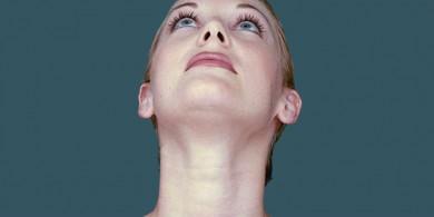 gidik-liposuction-yag-alma