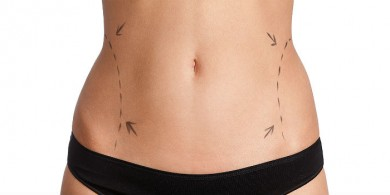 liposuction ve sigara